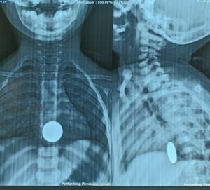 X-ray of foreign body (Coin) ingestion.