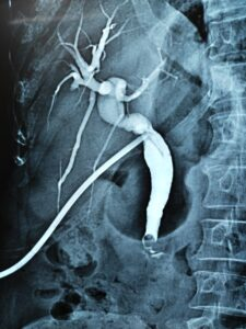 T-tube cholangiogram with retrained stone in CBD